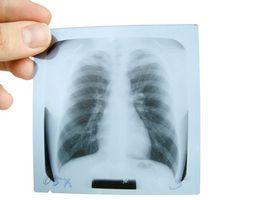 Hva er Røntgentett Dye laget av?