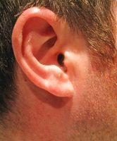 Hvordan du rengjør ørevoks med peroxide