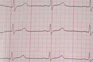 EKG Tolkning & Hyperkalemi