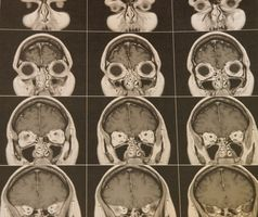 Menneskelig Epilepsi