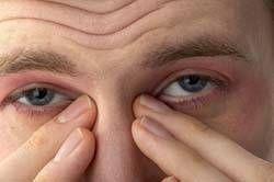 Hvorfor er mine øyne Vannaktig?