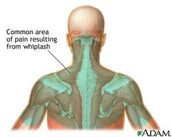 Betennelse i nakken hodepine