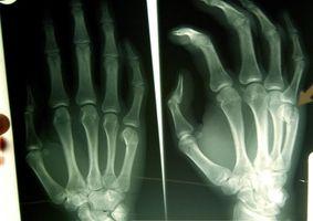 Kreft forekomster i Radiologer