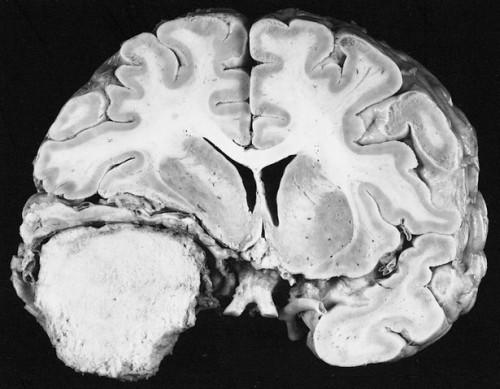 Hva er meningeomer?
