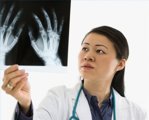 Hvordan leve med en Bone Cyste