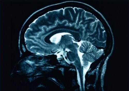 Symptomer på en mild hodeskade