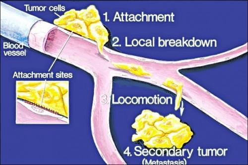 Tegn på kreft i livmoren