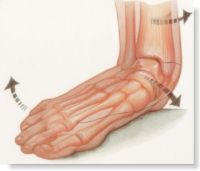 Flat Feet & Leg Pain
