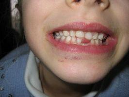Hjem rettsmidler for en infisert tann