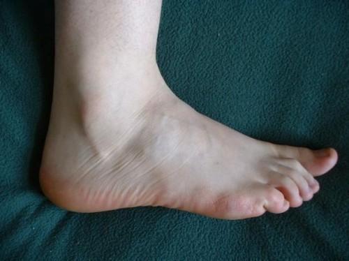 Den beste behandling for perifer nevropati i Feet