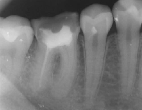 Kan en tann Abscess forårsake infeksjon i kroppen?