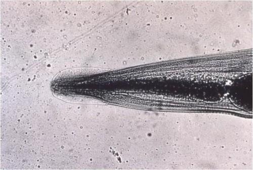 Hvordan oppdage og håndtere en Pinworm Infeksjon