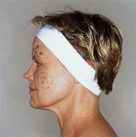 Telltale tegn på en ansiktsløftning