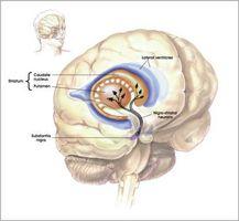 Hvordan virker Parkinsons sykdom Start?