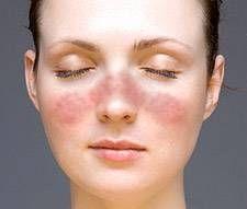 Hva er årsakene til Face Rash?