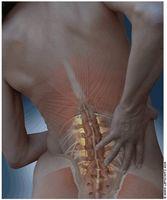 Hva er Spinalstenose?