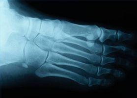 Midfoot Osteoarthritis Symptomer og eksamen