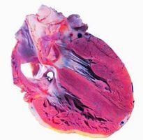Årsaker og symptomer på et svakt hjerte