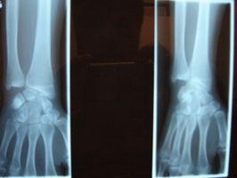 Hvordan er røntgen nyttig?