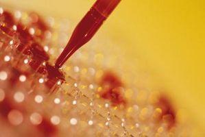 Laboratorieprøving for komplementfaktorer C3 & C4