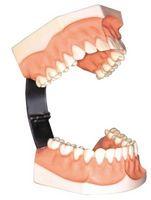 Slik holder de øvre proteser i munnen