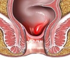 Symptomer og behandlinger av Hauger
