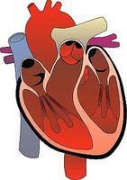 Hvordan Naturligvis Cure hjertesykdom