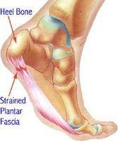 Årsaker og symptomer på Heel Pain