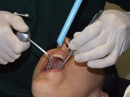 Profesjonelle Dental Instruments