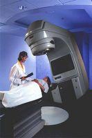 Om bivirkninger av strålebehandling