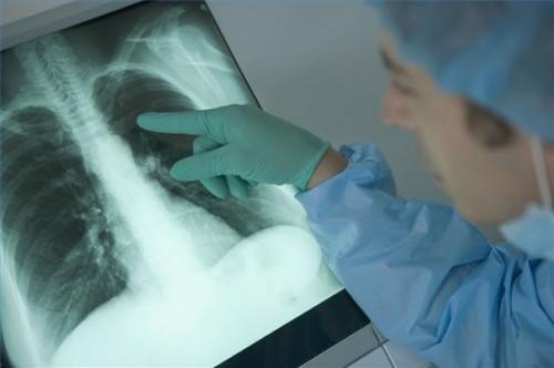 Hvordan Vurdere lungeskader
