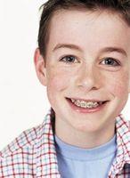Hvordan å bli vant til en Ortodontisk Retainer