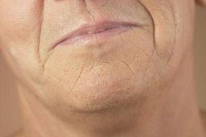 Hvordan eliminere rynker rundt munnen og ansiktet