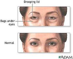 Hvordan bli kvitt mørke ringer og poser under øynene