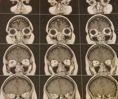 Hva er en Høyre Parietal Falcine meningeom?