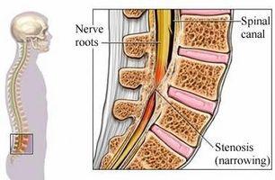 Definisjon av Spinalstenose