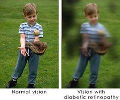 Hvordan identifisere Diabetisk retinopati