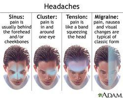 Årsaker til en dårlig migrene