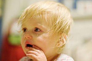 CMV virus hos babyer