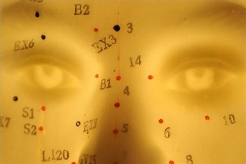 Hvordan avlaste overgangsalder Med Akupunktur