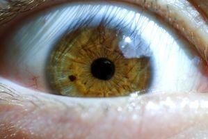 Netthinne venøs Ocular Disease