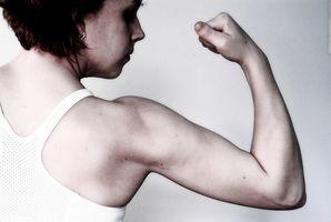 Plexus brachialis Problemer Etter Artroskopisk Shoulder Surgery