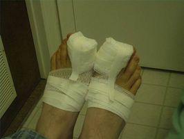 Inngrodd tånegl Pain Relief