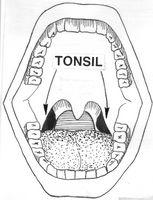 Hvordan er en Tonsillektomi Kirurgi Ferdig i en voksen?