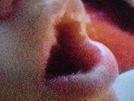 Hva er behandlingen for Lip Sprekker?