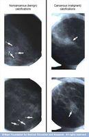 Forklaring av brystkreft Forkalkning