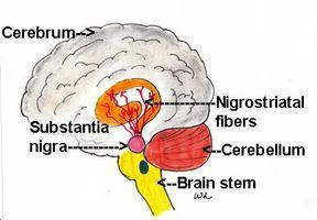 Parkinsons sykdom og bruk av Aricept