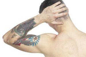 Tattoo Allergi Tegn og symptomer