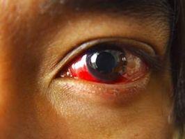 Hva er årsaken til røde øyne?