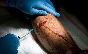 Hvordan stoppe blødninger og behandle en Flesh Wound